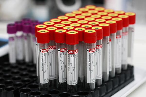 Laboruntersuchungen <br>MRSA Screening<br>Bioimpedanz-Messung